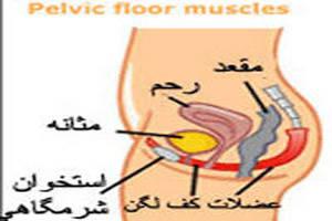 افتادگی مثانه خانم ها چه علائمی دارد + ورزش و روش درمان