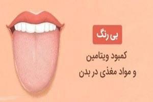 تشخیص بیماری با رنگ زبان + تصاویر