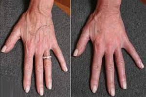 برجستگی رگ های روی دست نشانه چیست + درمان
