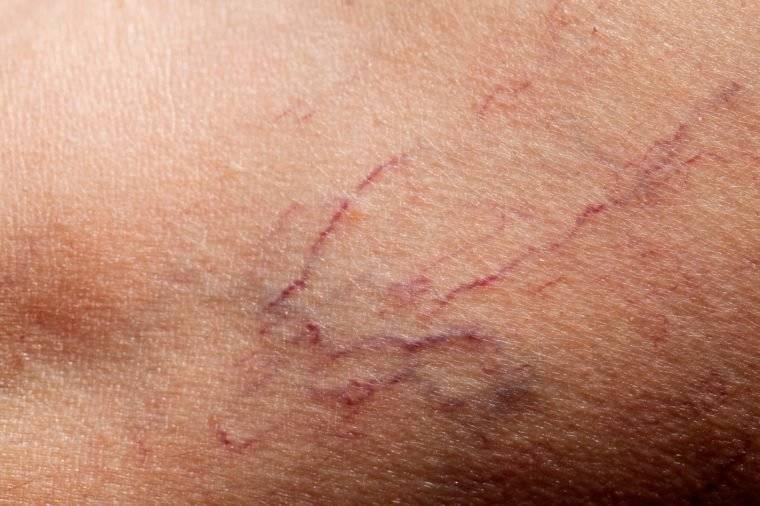 علت پارگی مویرگ زیر پوست و 7 راه عالی برای درمان