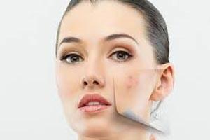 نشانه های عجیب لک های پوستی که باید حتما به پزشک بروید