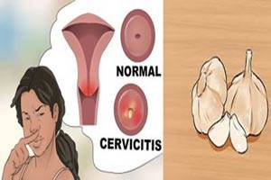 نحوه درمان عفونت واژن با سیر